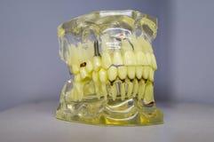 Zahnimplantate und Zähne im Schädel Lizenzfreies Stockfoto