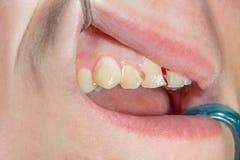Zahnkaries Füllen mit zahnmedizinischem zusammengesetztem photopolymer Material unter Verwendung der rabbders Das Konzept der zah stockbild