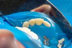 Zahnkaries Füllen mit zahnmedizinischem zusammengesetztem photopolymer Material unter Verwendung der rabbders Das Konzept der zah stockfoto