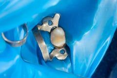 Zahnkaries Füllen mit zahnmedizinischem zusammengesetztem photopolymer Material unter Verwendung der rabbders Das Konzept der zah stockfotografie