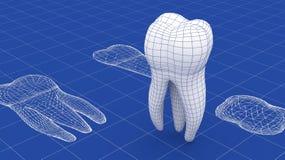 Zahnmasche über einem Plan Lizenzfreie Stockbilder