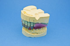 Zahnmedizinische Brücke Stockbild