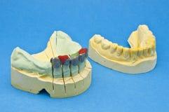 Zahnmedizinische Brücke lizenzfreie stockbilder