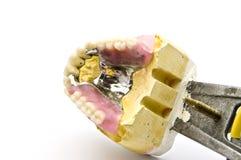 Zahnmedizinische Brücke stockfotos