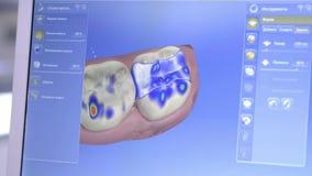 zahnmedizinische digitale modellierende Wiederherstellung 3D Modell 3d von Zähnen, gescannte Zähne des Patienten Der Doktor ist d stock video footage