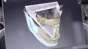 zahnmedizinische digitale modellierende Wiederherstellung 3D Modell 3d von Zähnen, gescannte Zähne des Patienten Der Doktor ist d stock video