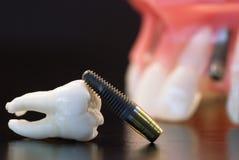 Zahnmedizinische Einpflanzung Stockfoto