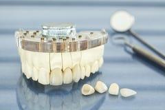 Zahnmedizinische Gesundheitspflege Lizenzfreies Stockfoto