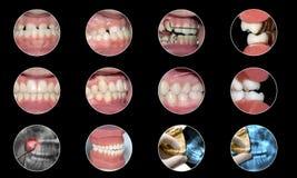 Zahnmedizinische infographic Orthodontiesammlung Stockfotos
