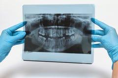 Zahnmedizinische Instrumente stockbild