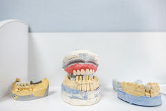 Zahnmedizinische Instrumente und Werkzeuge Lizenzfreies Stockfoto
