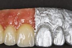 Zahnmedizinische keramische Brücke stockbild
