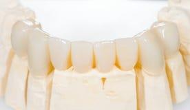 Zahnmedizinische keramische Brücke Stockfotografie