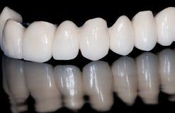 Zahnmedizinische Brücke stockbilder