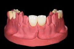 Zahnmedizinische keramische Kronen Stockbild