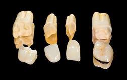 Zahnmedizinische keramische Kronen Stockfotos