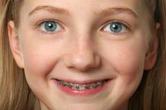 Zahnmedizinische Klammern Stockfotos