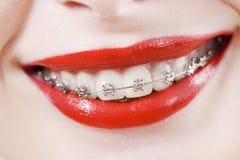 Zahnmedizinische Klammern Stockfoto