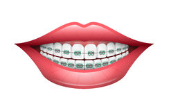 Zahnmedizinische Klammern Lizenzfreies Stockfoto
