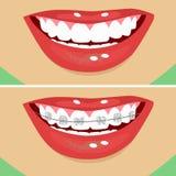 Zahnmedizinische Klammern, vorher und nachher stock abbildung