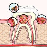Zahnmedizinische Krankheiten Stockbilder