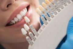 Zahnmedizinische Krone, die nahe weiblichem Mund aufstellt lizenzfreies stockfoto