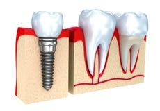 Zahnmedizinische Krone, Implantat und Zähne Stockfotos