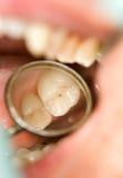 Zahnmedizinische Prüfung lizenzfreie stockfotografie