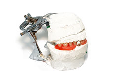Zahnmedizinische Prothese Stockbilder