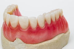 Zahnmedizinische Prothese Stockfoto