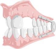 Zahnmedizinische Prothese Stockfotos