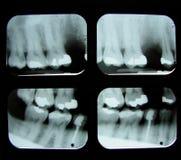 Zahnmedizinische Röntgenstrahlen Stockbild