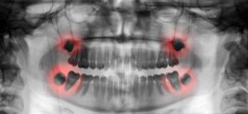 Zahnmedizinische Radiographie, die Zahnschmerzen zeigt Lizenzfreie Stockbilder