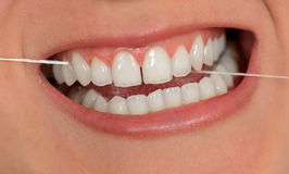 Zahnmedizinische Schnur Stockfoto