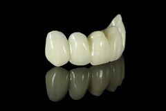Zahnmedizinische Zahn-Brücke stockbild