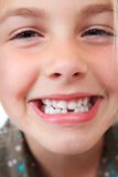 Zahnmedizinischer Abstand lizenzfreie stockbilder