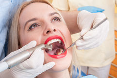 Zahnmedizinischer Bohrvorgang auf perfekten Zähnen lizenzfreie stockfotos