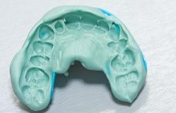 Zahnmedizinischer Eindruck stockfotos