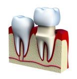 Zahnmedizinischer Kroneninstallationsprozeß, lokalisiert auf Weiß Stockbild