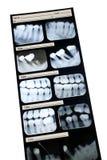 Zahnmedizinischer Röntgenstrahl Lizenzfreies Stockfoto