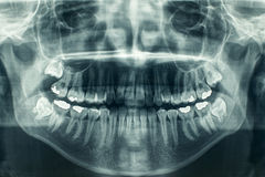 Zahnmedizinischer Röntgenstrahl Lizenzfreie Stockfotos