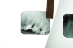 Zahnmedizinischer Röntgenstrahl Stockfoto