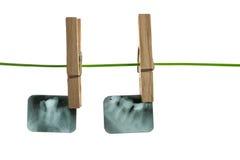 Zahnmedizinischer Röntgenstrahl Stockbild