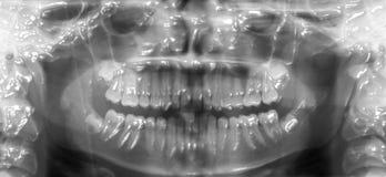 zahnmedizinischer Röntgenstrahl 3d stock abbildung