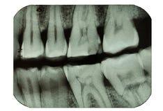 Zahnmedizinischer Röntgenstrahlfilm, der Zähne zeigt Stockfotografie