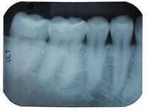 Zahnmedizinischer Röntgenstrahlfilm, der Zähne zeigt Stockbilder