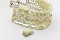 Zahnmedizinisches Baumuster Stockfoto
