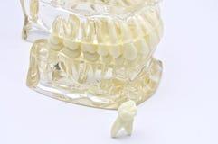 Zahnmedizinisches Baumuster Stockbilder
