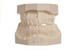 Zahnmedizinisches Baumuster der menschlichen Zähne auf Weiß Stockfotografie