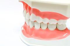Zahnmedizinisches Baumuster der Zähne stockbilder